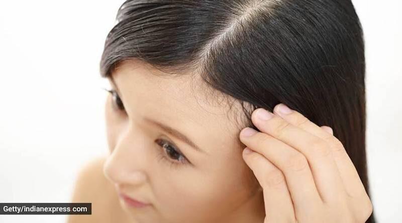 scalp care with sea moss gel